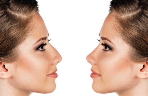 La chirurgie esthétique du nez - Dr Delatallaide - Versailles (78)