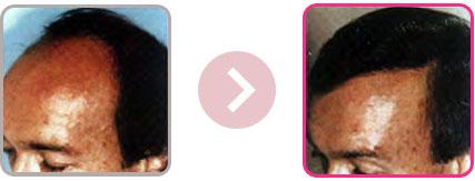 Greffe de cheveux à Versailles - Dr Delataillade