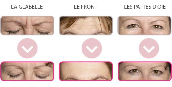 Injection de botox à Versailles - Avant / après
