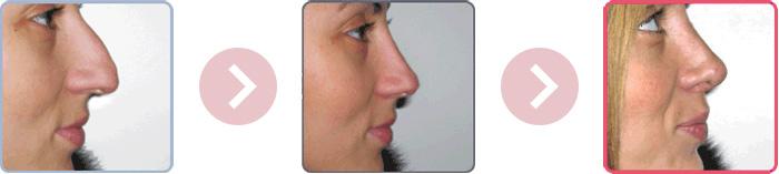 rhinoplastie2